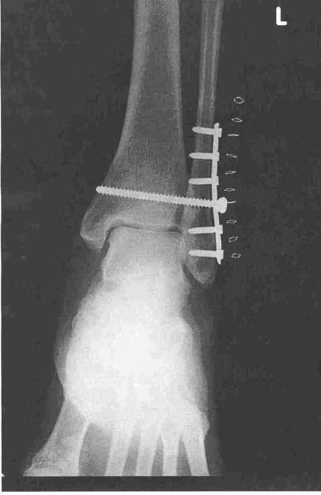 A first for me: an X-ray via e-mail